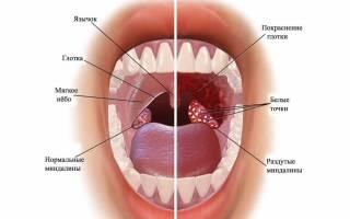 Заболевания горла симптомы