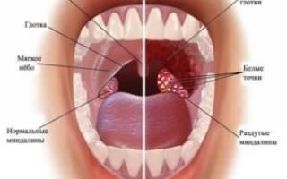 Симптомы ринофарингита у взрослых