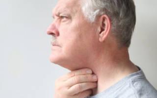 Трахеита симптомы