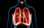 Воспаление легких пневмония