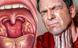Чем полоскать воспаленное горло в домашних условиях