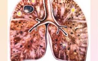 Барсучий жир от туберкулеза как принимать