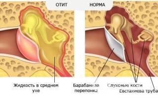 Как лечить катаральный отит
