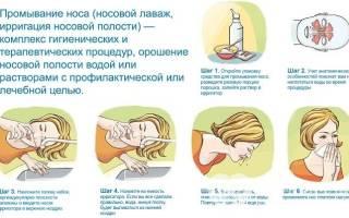 При гайморите можно промывать нос