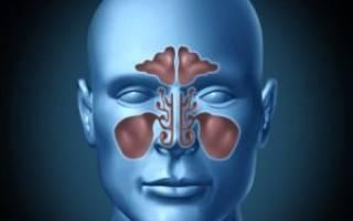 Двухсторонний гайморит симптомы