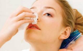 Кровяные выделения из носа