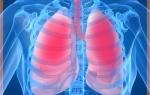 Лечение пневмонии народными средствами в домашних условиях