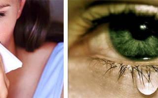Почему слезятся глаза при насморке