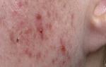 Прыщи при простуде на лице