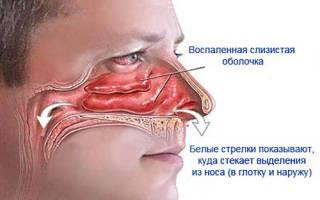Лекарственные средства от насморка