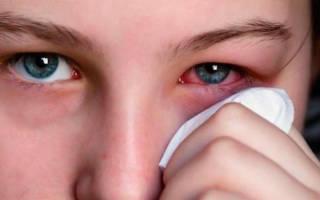 Слезотечение при простуде лечение