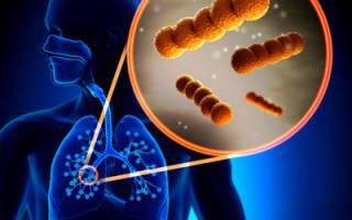 Инкубационный период у пневмонии