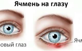 Болят глаза после простуды