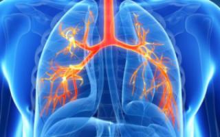 Сколько лечится двухсторонняя пневмония
