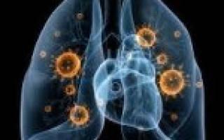 Чем лечить вирусную пневмонию