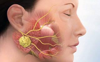Застудила лицевой нерв симптомы лечение