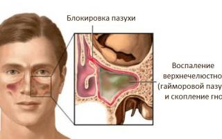 Гайморит лечение прокол