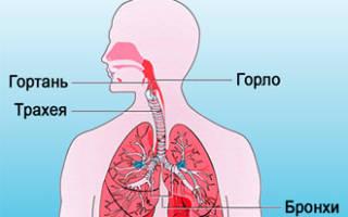 Как вылечить хронический трахеит