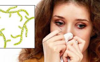Гайморит грибковый симптомы