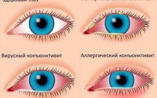 Слезится один глаз при простуде