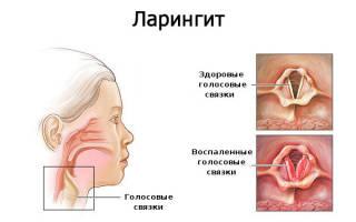Лекарство ларингит