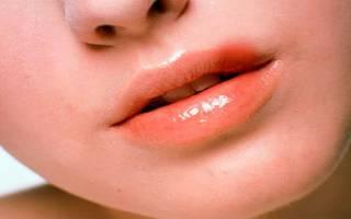 Что делать когда простуда на губе