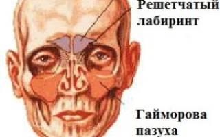 Современные методы лечения гайморита