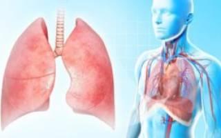 Как лечиться при пневмонии